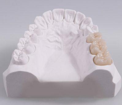 Laboratorio de Protesis Dental en Madrid _ Sunstar Laboratorio