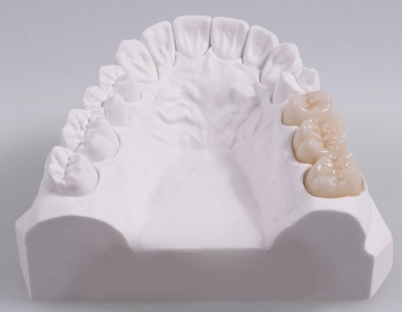 sunstar_protesis_dentales-fijas